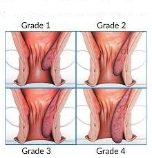 Como se clasifican las hemorroides internas
